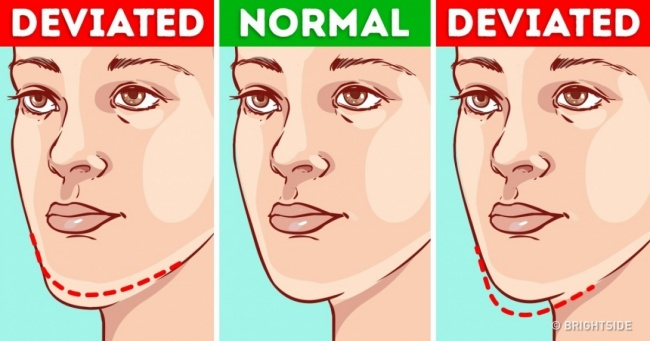 What Your Chin Can Say About Your Health